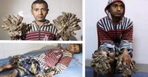 THIS MAN HAD TO UNDERGO 16 SURGERIES JUST TO RESTORE HIS HANDS TO ITS NORMAL APPEARANCE—BIZARRE!