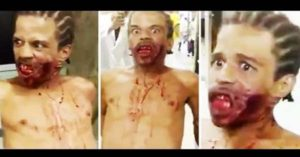 Hospital Staff were Scared of This 'Zombie Man and He Had a Gunshot Wound on His Face!