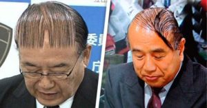 20 men who can't accept that they're bald. The #3 will make you vomit of tenderness