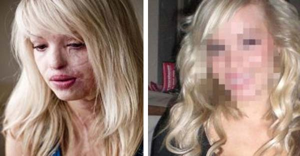 Aspiring Model Makes Stunning Recovery Ten Years after Her Ex Boyfriend Threw Acid in Her Face