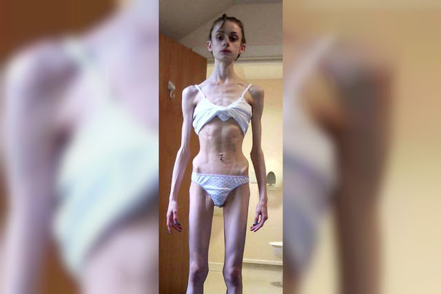 anorexia and causation Anorexia and bulimia psychologist - anywhere you need help anorexia nervosa describes an eating disorder characterized by low body weight and body image distortion.