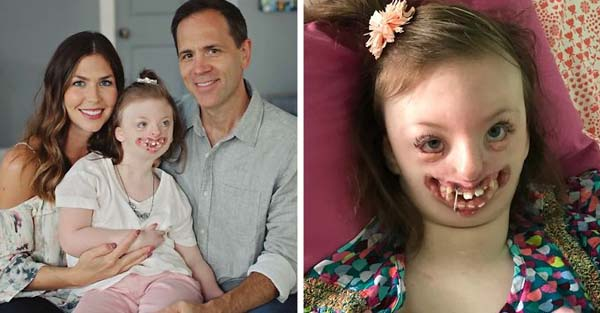 This 9-Year-Old Girl's Face Was Used To Promote Abortion, So Her Mom Got Brilliant Revenge